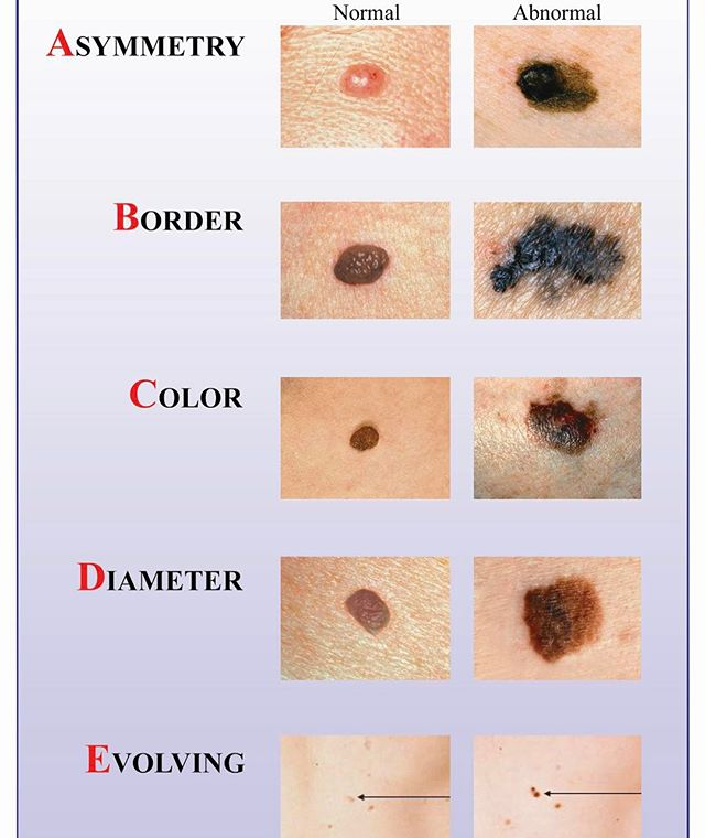 May Is Melanoma Awareness Month American Dermatology